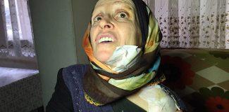 Eşinin kaynar su dökerek yaktığı kadın: Yapma diye yalvardım